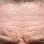 How do You Relax Forehead Wrinkles?