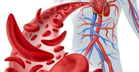 Using Hemoglobin A1C Levels to Diagnose Diabetes